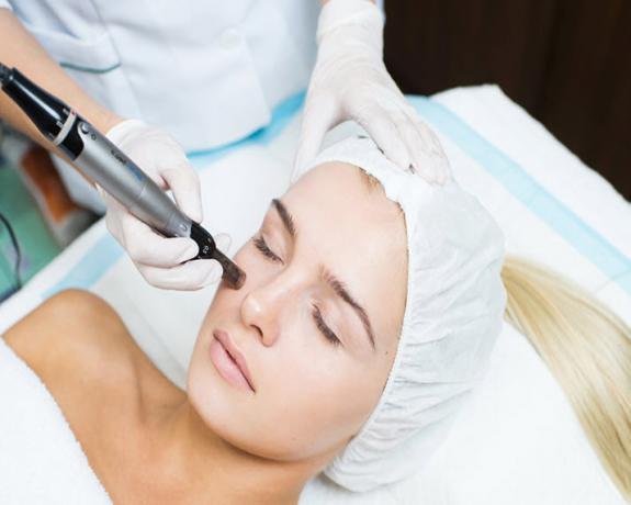 Dermapen (Skin Renewal)